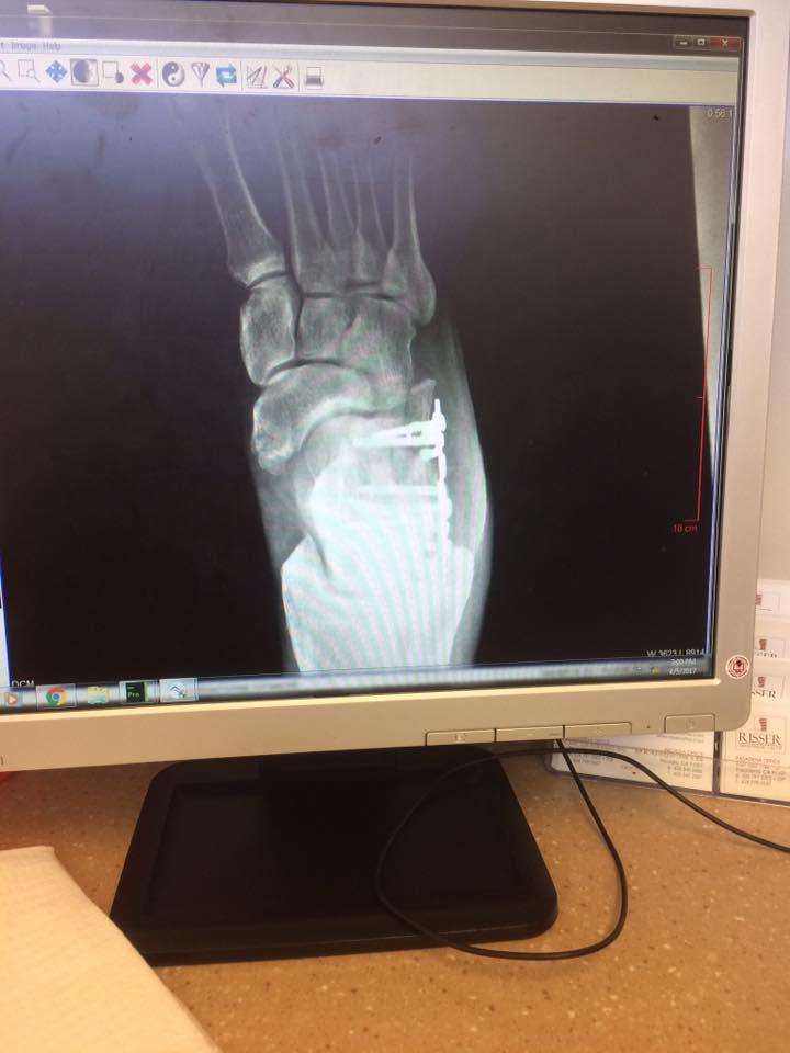 Jim Tavare X-Ray 6