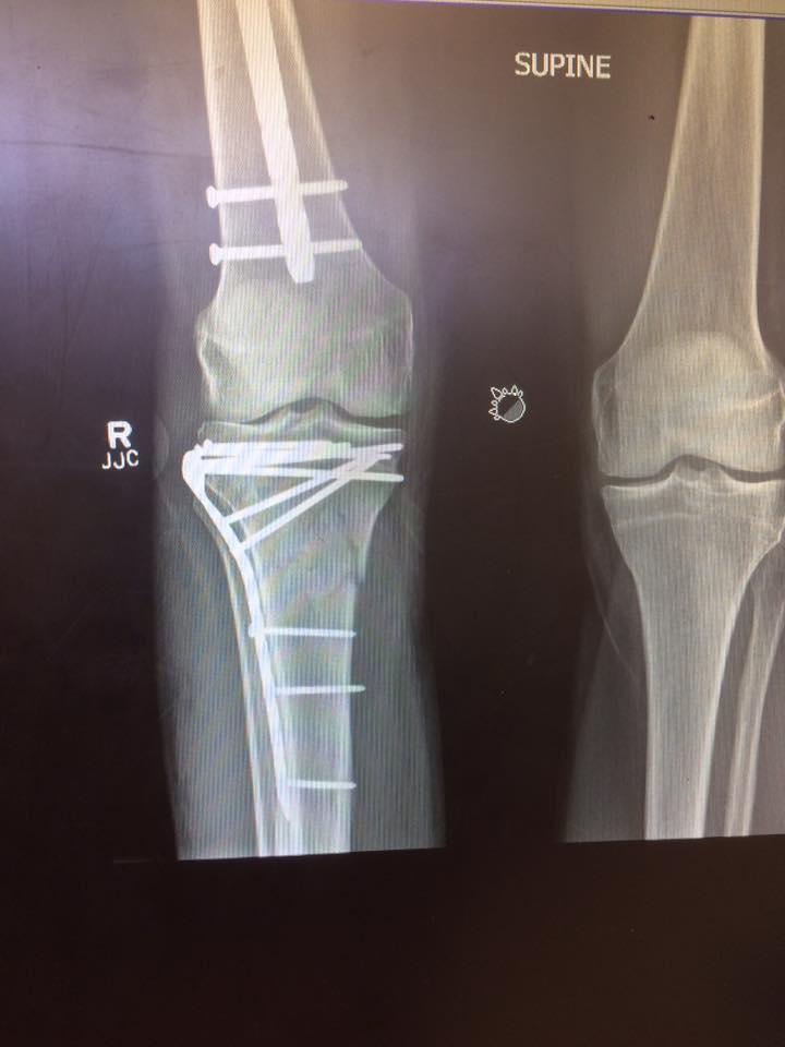 Jim Tavare X-Ray 5